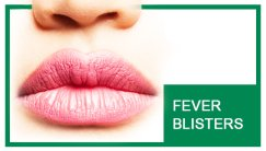 Biolife Nutrition - Fever Blisters