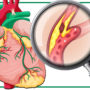 Can One Reduce Cholesterol Via the Natural Route?